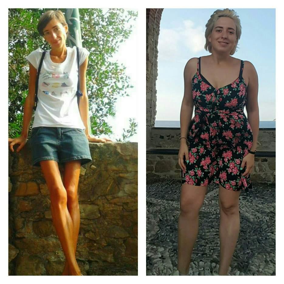 francesca-ex-anoressia-2jpg